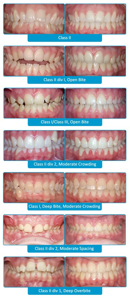 SureSmile Before and After